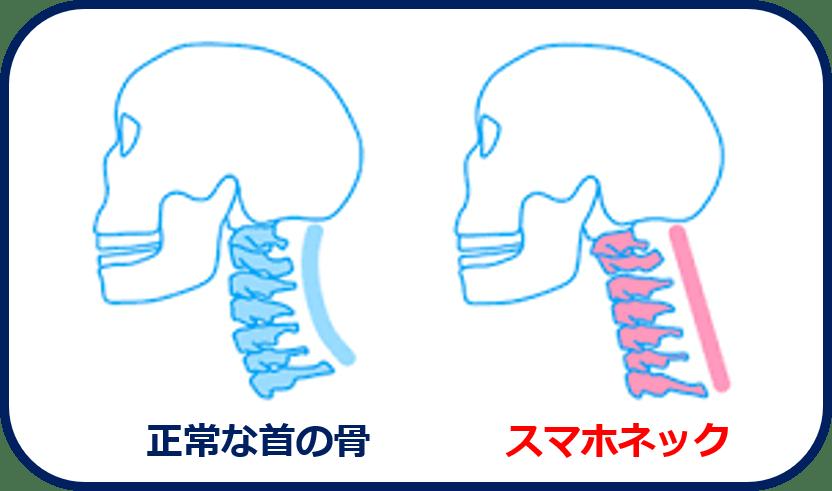 正常な首の骨とスマホネックの違い