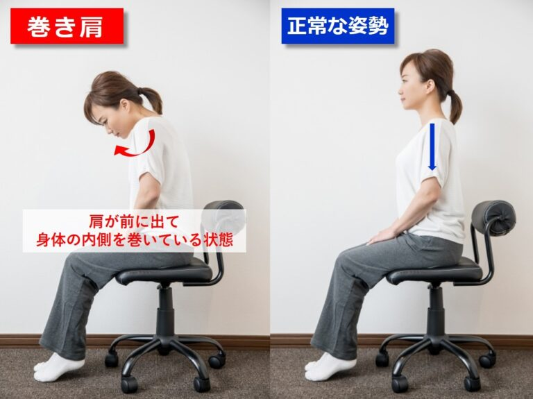 巻き肩と正常な姿勢の比較
