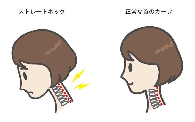 ストレートネックと正常な首